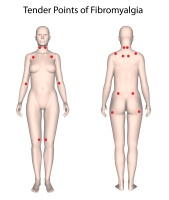 Tender points of fibromyalgia
